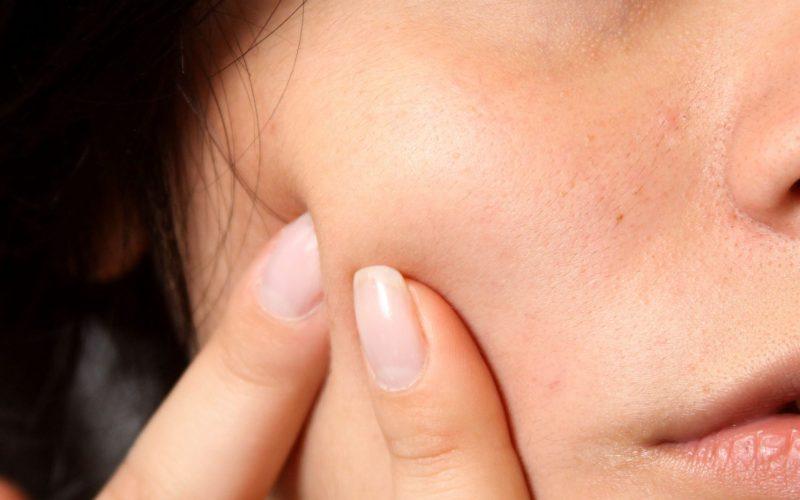 Perché viene l'acne? Si può curare?