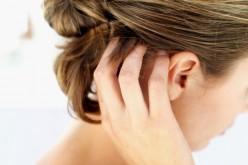 La dermatite seborroica: l'infiammazione della pelle e i rimedi possibili