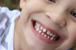5 consigli per mantenere i denti dei bambini in salute